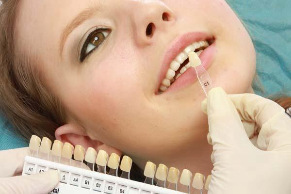 Applicare le Faccette Dentali