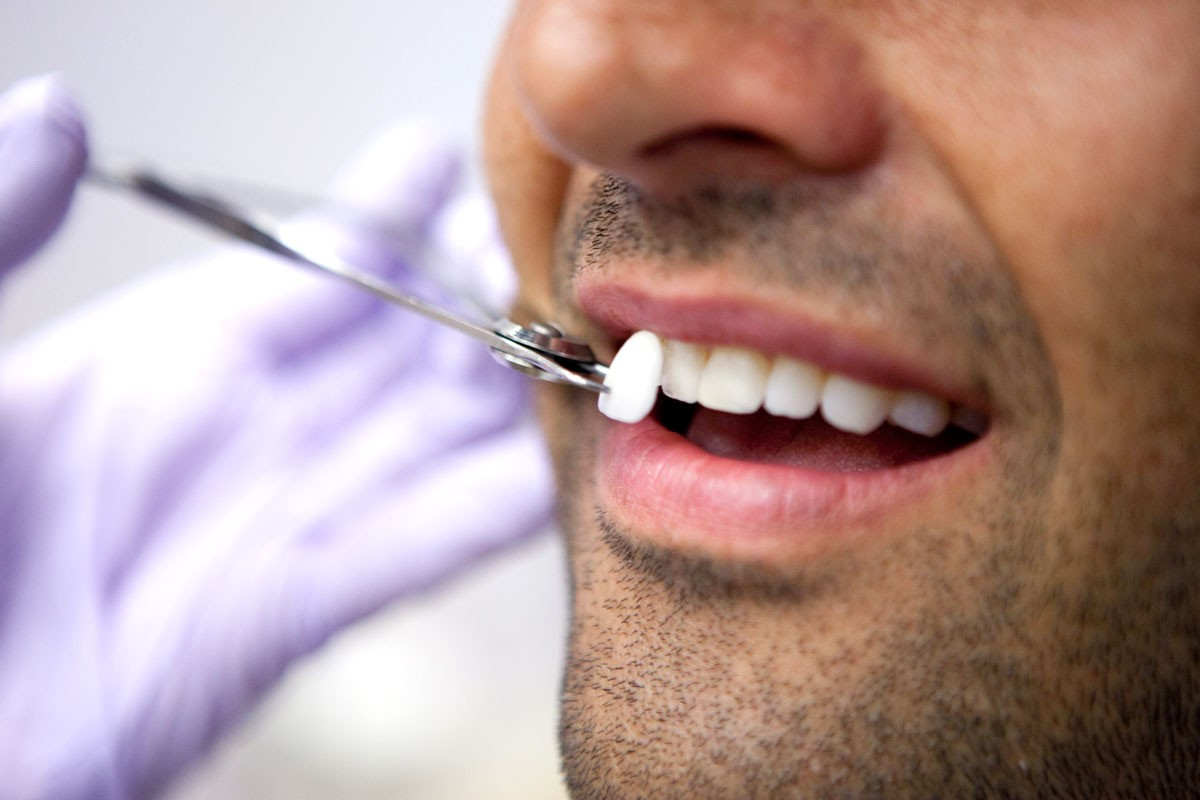 Installare le faccette dentali