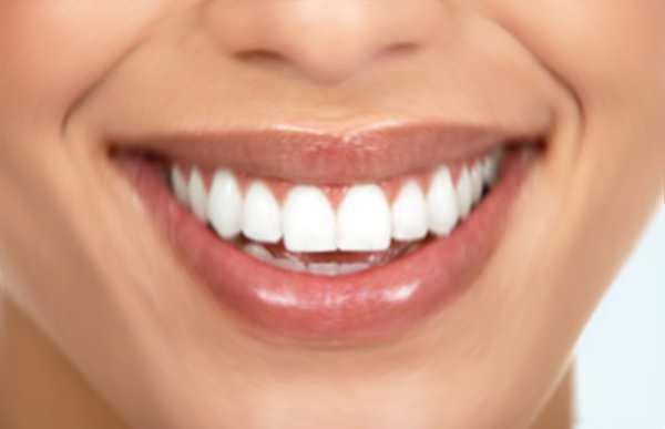 L e migliori faccette dentali