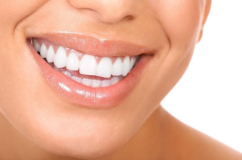 Impianti dentali a Trapani