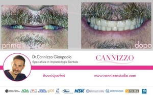 implantologia dentale